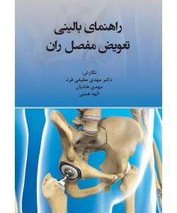 راهنمای بالینی تعویض مفصل ران